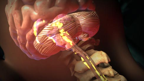 New York CHAM Spine Tumor Surgery Medical Animation